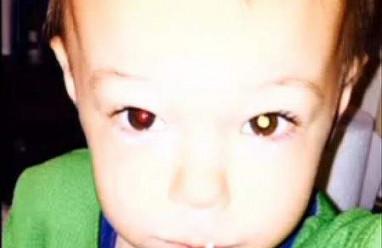 mỹ, người phụ nữ, phát hiện sớm, đèn flash, chuyện lạ, bức ảnh, bệnh về mắt, cứu sống con