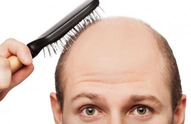 rụng tóc, hói đầu, điều trị, thuốc uống, thực phẩm chức năng