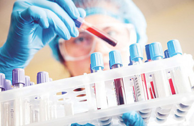quan hệ, an toàn, gái mại dâm, xét nghiệm, test nhanh, âm tính, xét nghiệm sinh hóa, bình thường, cuasotinhyeu