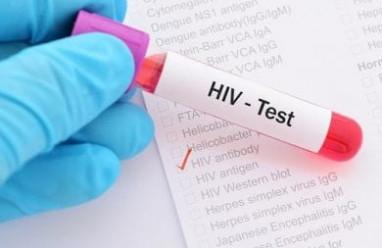 xét nghiệm máu, huyết học, sinh hóa, hiv, xét nghiệm hiv, cuasotinhyeu, xác định