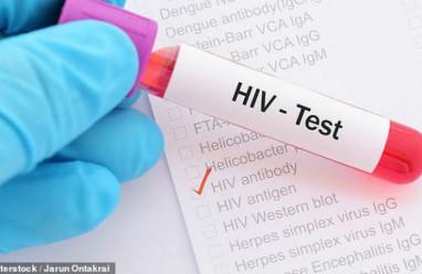 hiv, biểu hiện, xét nghiệm, phương pháp xét nghiệm,hiệu quả