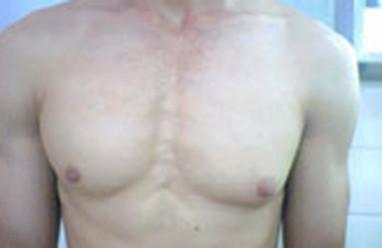 Ngực của nam giới bị đau khi chạm vào, có phải là dấu hiệu của K vú ?