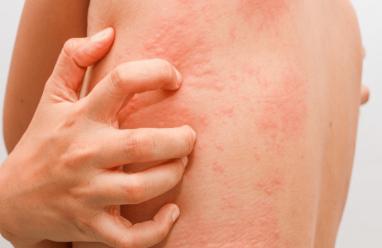 Cứ đổ mồ hôi là mẩn đỏ, ăn tôm thì bị dị ứng là bệnh gì?