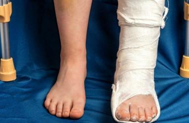 Gãy hở xương đùi sau 3 tháng có thể đi lại được hay chưa ?