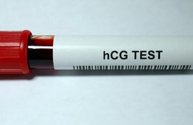 Xét nghiệm HCG sau quan hệ 8 ngày có cho kết quả đúng không ?