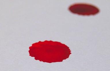 Ra máu đỏ sẫm kèm theo đau bụng ở tháng thứ 2 thai kỳ