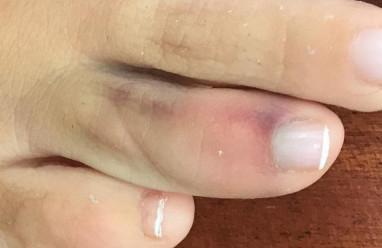 Vết bầm ở chân có làm kết quả xét nghiệm bị thay đổi không ?