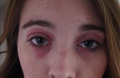 Da khóe mắt bị nổi mẩn đỏ, tróc vảy trắng và ngứa!!!
