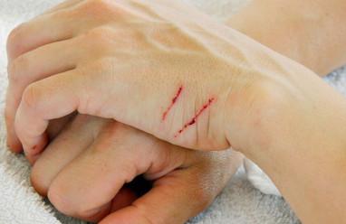 Cào xước tay bạn có tiềm ẩn nguy cơ lây nhiễm HIV không?