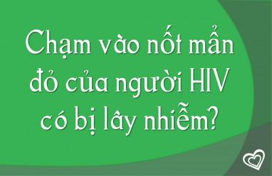 Chạm vào nốt mẩn đỏ của người HIV có bị lây nhiễm?