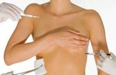 tuyến vú, xơ nang tuyến vú, xơ nang, đầu vú, tiền mãn kinh, lão hóa, lành tính