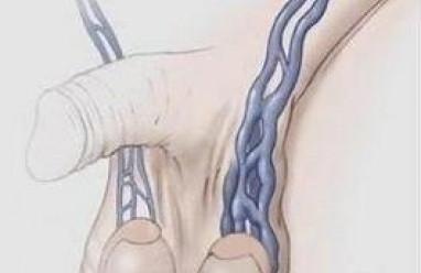 tinh hoàn, thừng tinh, giãn tĩnh mạch thừng tinh, biểu hiện giãn tĩnh mạch thừng tinh, chẩn đoán giãn tĩnh mạch thừng tinh, ảnh hưởng giãn tĩnh mạch thừng tinh, theo dõi giãn tĩnh mạch thừng tinh, phẫu thuật giãn tĩnh mạch thừng tinh, hiệu quả phẫu thuật