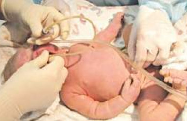 kiến thức trẻ sơ sinh, trẻ sơ sinh 0 đến 12 tháng, chăm sóc trẻ sơ sinh, bệnh thường gặp ở trẻ, kiến thức sức khỏe, kiến thức sống khỏe, bí quyết sống khỏe, hội chứng màng trong, hội chứng suy hô hấp
