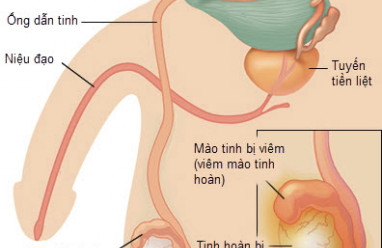 ống dẫn tinh, tắc ống dẫn tinh, viêm ống dẫn tinh, vô sinh nam giới, nguyên nhân tắc ống dẫn tinh