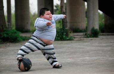 Nguy hiểm việc thừa cân béo phì ở trẻ em