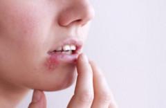 Bệnh mụn rộp sinh dục dễ nhầm với mụn nhọt thông thường
