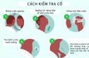 Ung thư tuyến giáp - Nguyên nhân và cách phát hiện
