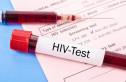Xét nghiệm kháng nguyên, kháng thể HIV (HIV Combo Ag/Ab, HIV Combi PT)
