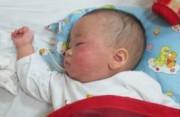 bệnh sởi, biến chứng của sởi, biến chứng thường gặp của sởi, biến chứng muộn từ sởi, biến chứng của bệnh sởi ở trẻ.