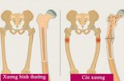 Còi xương – thủ phạm khiến trẻ thấp còi, chậm lớn, viêm phổi, bố mẹ chớ coi thường!