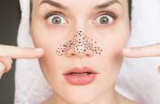 Bật mí cách trị mụn đầu đen an toàn hiệu quả ngay tại nhà