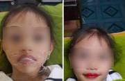 Bé gái 5 tuổi đã xăm môi: Hệ lụy khi cho trẻ làm đẹp quá sớm