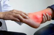 Nguyên Nhân Khiến Nam Giới Dễ Mắc Bệnh Gout So Với Nữ Giới