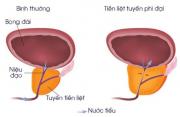 Phì đại tiền liệt tuyến: Nguyên nhân, triệu chứng và cách xử lý