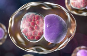 Loại vi khuẩn lây qua đường tình dục dễ khiến phụ nữ vô sinh