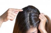 Nguyên nhân khiến tóc bạc sớm và cách khắc phục