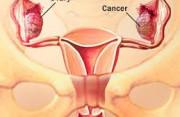 kiến thức phụ khoa, bệnh phụ khoa, bộ phận sinh dục nữ,buồng trứng, kiến thức sức khỏe, kiến thức sức khỏe,