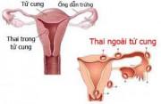 thai ngoài tử cung, chửa ngoài tử cung, nguy hiểm, chửa ngoài tử cung vỡ, nguyên nhân thai ngoài tử cung, xử lý thai ngoài tử cung