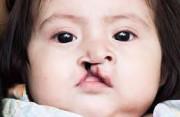 sứt môi hở hàm ếch, chăm sóc trẻ sứt môi hở hàm ếch, nguyên nhân sứt môi hở hàm ếch, điều trị sứt môi hở hàm ếch