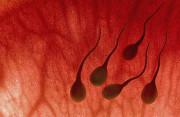 tinh dịch, xuất tinh, tinh trùng, máu trong tinh dịch, màu tinh dịch, tế bào máu, kháng thể kháng tinh trùng