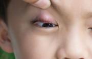 Chắp và lẹo mắt ở trẻ nhỏ: Dấu hiệu nhận biết và cách điều trị