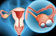 Dấu hiệu nhận biết ung thư buồng trứng giai đoạn sớm