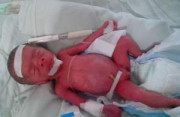 trẻ nhỏ, suy dinh dưỡng, suy dinh dưỡng bào thai, nguy cơ, nhiễm khuẩn, hạ thân nhiệt, lồng ấp, cho bé bú sữa mẹ, sữa ngoại, dinh dưỡng