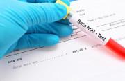 có kinh, ra máu, niêm mạc tử cung, có thai, xét nghiệm, beta hcg, hi vọng, thụ thai, cuasotinhyeu