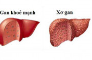 viêm gan b, xơ gan, điều trị, viruts, chế độ, ăn uống, cuasotinhyeu.
