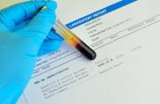 siêu âm, xét nghiệm, phát hiện, thai sớm, cuasotinhyeu, hcg, nồng độ