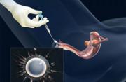 bơm tình trùng, sinh sản, tim thai, iui, cuasotinhyeu, ivf. khó có con