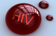 quan hệ, HIV, lây nhiễm, nguyên nhân, xét nghiệm, cuasotinhyeu.