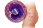 mang thai, túi thai, kích thước, hình dạng, thai nhi yếu, dọa xảy thai, cuasotinhyeu.