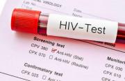 phơi nhiễm, HIV, xét nghiệm âm tính, kim tiêm cũ, suy giảm miễn dịch, cuasotinhyeu