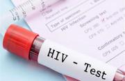 xét nghiệm, kth bằng tay, lo lắng, thoải mái, hạt ngọc dv, đi khám, xét nghiệm hiv, giang mai, cuasotinhyeu