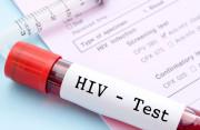bênh HIV, nguy cơ lây nhiễm, triệu chứng điển hình, bạch cầu, cuasotinhyeu