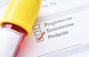 định lượng prolactin, ngưỡng bình thường,cao,hơn một năm, sinh sản,cuasotinhyeu