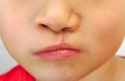 sinh con đầu lòng, phát hiện, hở vòm miệng nhẹ, ảnh hưởng, sức khỏe, phẫu thuật, cuasotinhyeu