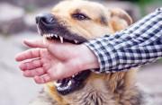 chó nhà, đã tiêm phòng, vết thương, mu bàn tay, không chảy máu, bầm tím, theo dõi, 15 ngày, tiêm phong, cusotinhyeu