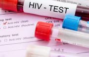 qhtd không an toàn, viêm amidan, test nhanh, xét nghiệm, hiv, phương pháp, âm tính, chính xác, cuasotinhyeu
